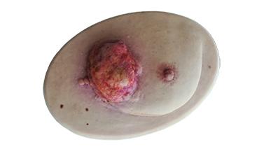 Die Behandlung von Tumorwunden - Curatio & Care®